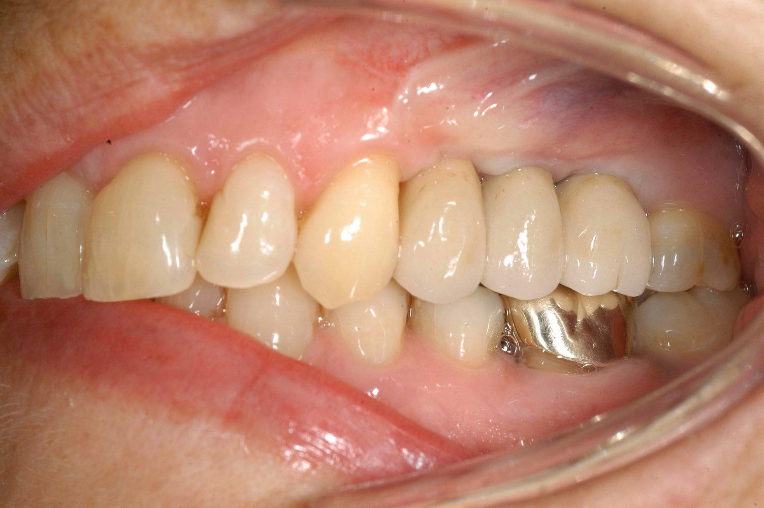 brug-3delig-op-2-implantaten-2