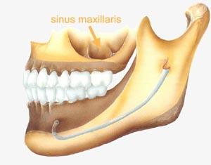 sinus5